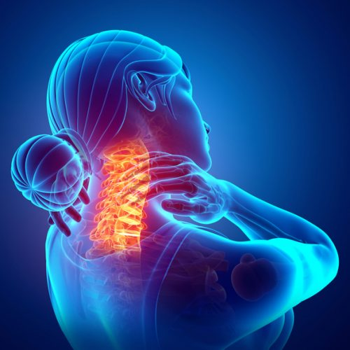 Acupuncture for Neck Pain and Whiplash
